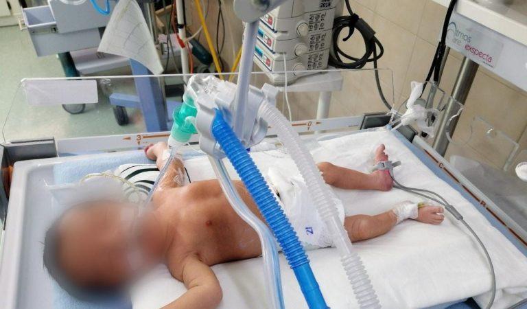 Atienden en el IMSS con éxito a 2 recién nacidos con órganos expuestos
